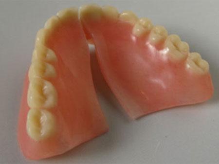 denture-repair-1