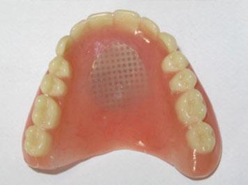 denture-repair-2
