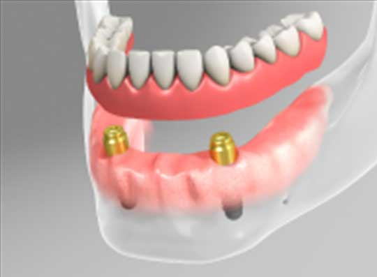 straumann-implants-1