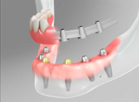 straumann-implants-2