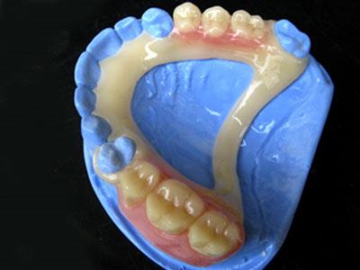 Bio-Dentaplast-1